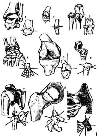 ...суставы: 3 - проксимальный лучелоктевой сустав.